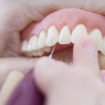 À quel professionnel confier la pose de ses prothèses dentaires